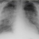 radiologiecasuss